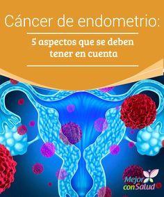 Cáncer de endometrio: 5 aspectos que se deben tener en cuenta  Según datos estadísticos, el cáncer de endometrio suele a afectar a 1 de cada 100 mujeres, siendo más frecuente en edades posmenopáusicas.