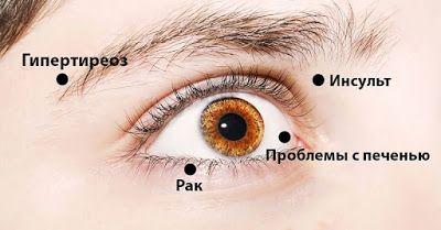 Полезные советы: 8 сигналов, при помощи которых глаза предупреждают о проблемах со здоровьем! Обрати внимание!