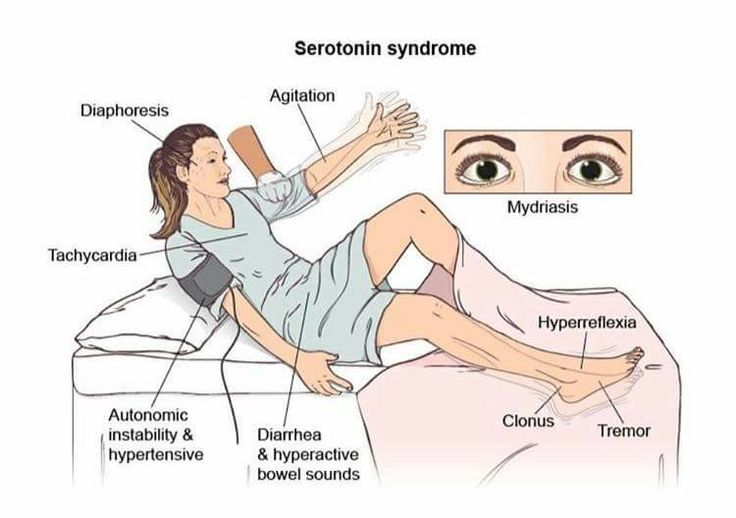 Mortonin Syndrooma