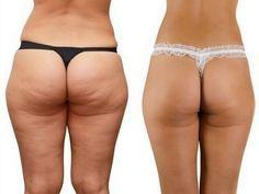 A gordura teimosa que esta em suas coxas, barriga, nádegas e braços é o pior pesadelo, especialmente para as mulheres! A celulite não conhece idade e provavelmente é uma das questões
