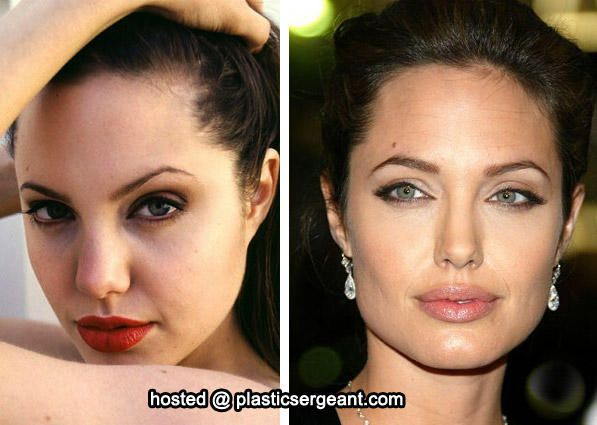 Angelina Jolie nose job before and after  Plastic Surgery Sydney www.clarifyclinic.com.au