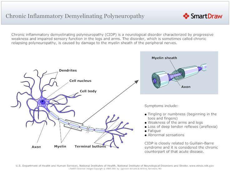 Chronic Inflammatory Demyelinating Polyneuropathy (CIDP) with Demyelinating Disease