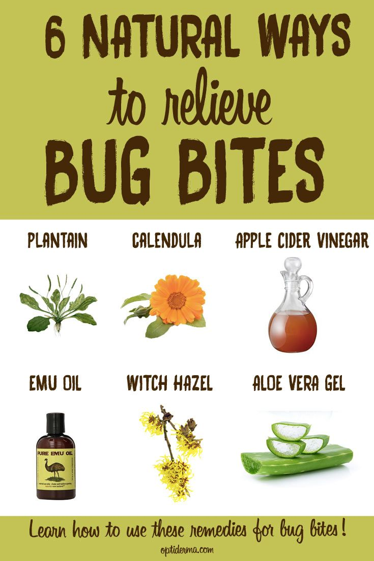Best 25 Bed Bug Remedies Ideas On Pinterest Bed Bug