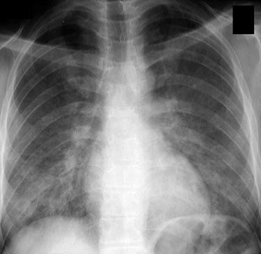 Figure 2. Chest radiograph of an HIV positive person with a CD4 cell count below 200 cells/mm3, demonstrating the characteristic bilateral granular opacities of PCP. Bronchoscopy with bronchoalveolar lavage fluid microscopic examination revealed Pneumocystis cysts and trophic forms. Courtesy of Laurence Huang, MD.