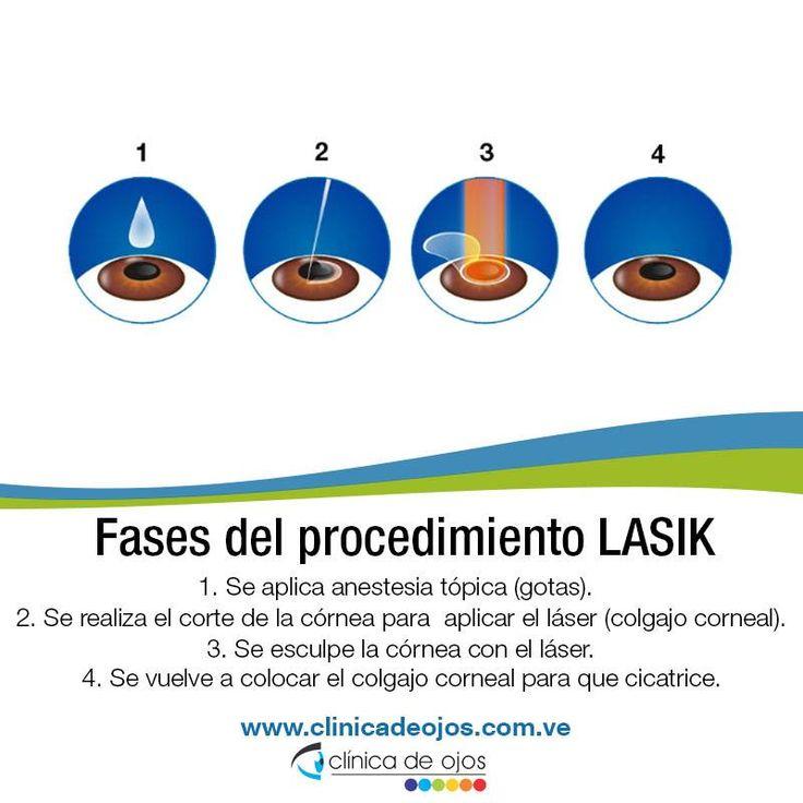¿Conoces cuáles son los beneficios de la operación LASIK? La cirugía LASIK puede beneficiar a un gran número de personas con miopía, hipermetropía y astigmatismo, y en Clínica de Ojos es un procedimiento rápido, seguro e indoloro, a través del cual se elimina la dependencia a lentes de montura o lentes de contacto. El procedimiento utiliza un láser controlado por una computadora que personaliza la cirugía en cada ojo del paciente. Sin necesidad de suturas o bisturí. ¡Aquí te mostramos en 4…