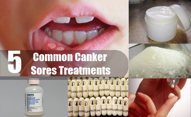 5 Common Canker Sores Treatments