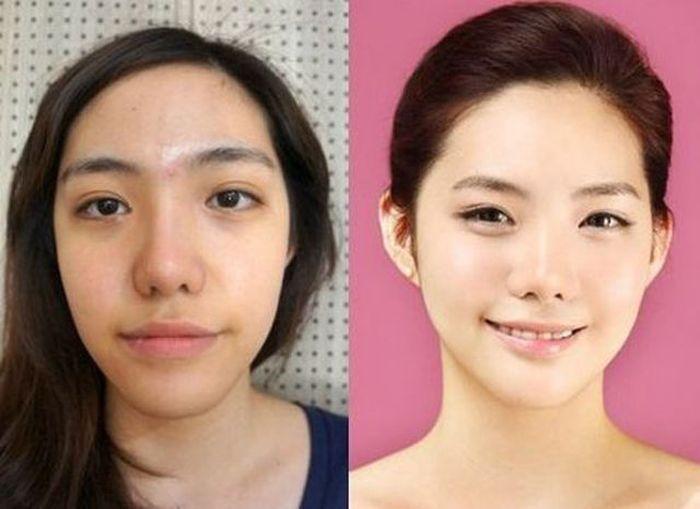 #Korea #photos #Plastic #South #Surgery