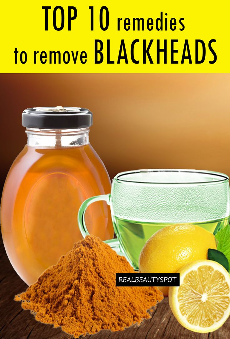 Top-10-remedies to get rid of blackheads at home using lemon, turmeric, green tea, honey and other kitchen ingredients...