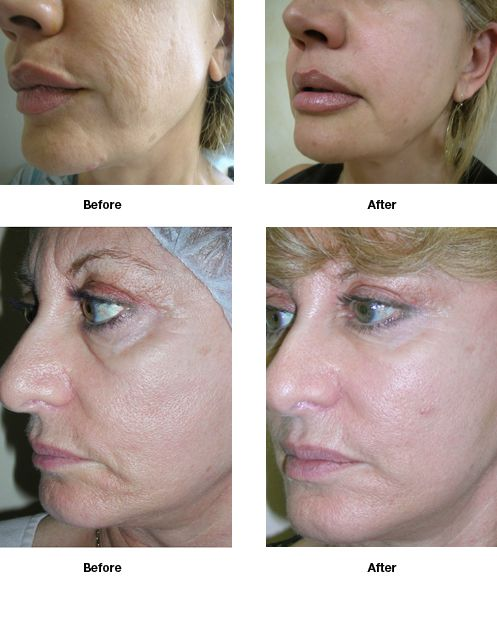 Dr. Nathan Newman - Advanced Cosmetic Surgery