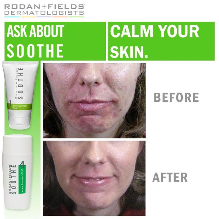 Rodan And Fields Before And After | Treating Rosacea, Eczema and Psoriasis | Sensitive Skin https://RitaCaldwell.myrandf.com