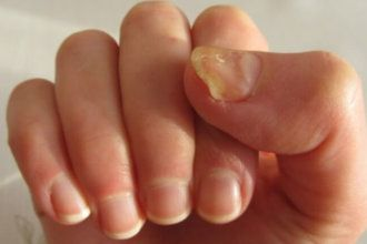 Yellow nails? Here are 10 natural remedies that will get rid of this issue!