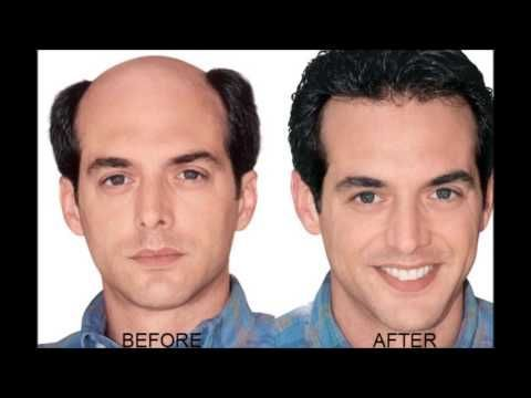 Onion Juice Cure Hair Loss And Promote Hair Regrowth  How To Regrow Hair