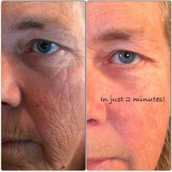 Check out these results in just 2 minutes using Instantly Ageless!!  Go to www.kristenwarden.jeunesseglobal.com to order yours TODAY! #wrinkles #instantlyageless #crowsfeet #2minutemiracle #fountainofyouth