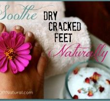 Dry, cracked feet can drive you crazy! But worry no longer – you can soothe them fast and naturally using these homemade foot scrub and foot cream recipes.