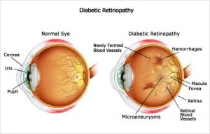 Diabetic retinopathy is a serious complication of diabetes that affects the retina of the eye leading to vision loss. The changes in the blood vessels of the retina cause this disorder which refer to the four major diabetic retinopathy stages observed. The retinal changes cause no symptoms during the initial stages of diabetic retinopathy, but as it progresses loss of vision occurs. Both the eyes get affected by this disorder.