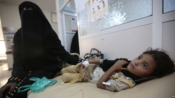 #Malnourished Children at Risk of Death from Cholera in Yemen, Africa - Voice of America: Voice of America Malnourished Children at Risk of…
