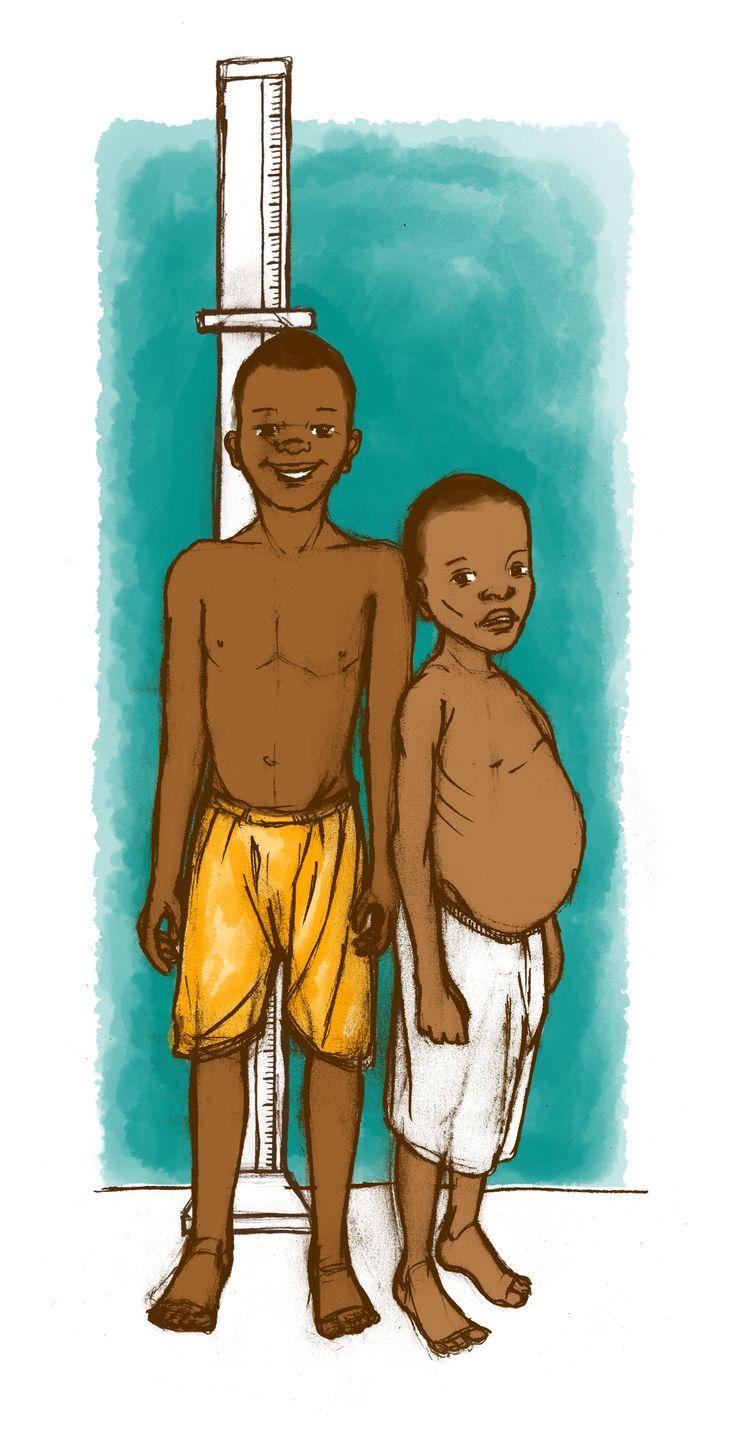 Une grossesse précoce peut induire un retard de croissance chez l'enfant.
