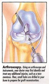 ACL Injuries - Arthroscopy.