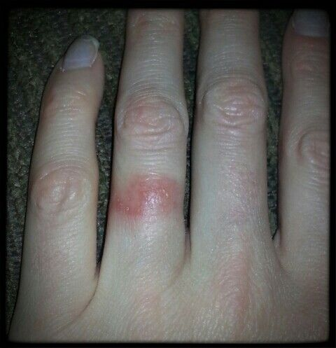 Wedding ring rash problem solver! I need to give this a try. I hate not wearing my ring