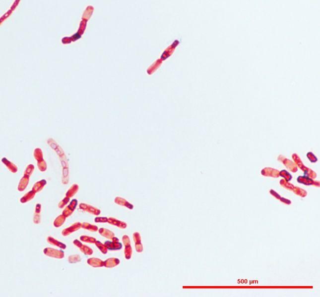 Bacteria endofítica de garbanzo teñida mediante la técnica de Tinción Gram. Esta tinción diferencial clasifica a este endófito como Gram negativo, ya que no pudo retener el complejo insoluble entre el Cristal Violeta y Lugol al ser tratadas con un agente decolorante (etanol). De tal manera que, estas células desteñidas adquirirán el color rojo o rosado de un contra-tinte llamado  Safranina, añadido en un siguiente paso. Clásicamente, este tipo de tinción ha permitido diferenciar dos grandes…