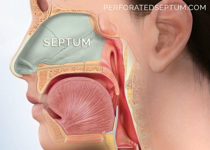 Perforated septum septal perforation treatment specialist