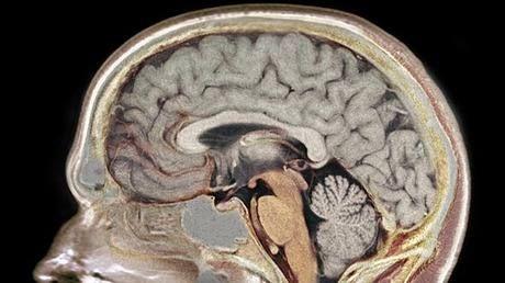7 dicas da neurociência para melhorar a sua concentração | Exame.com