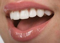 БЕЛОСНЕЖНЫЕ ЗУБКИ - 5 ОЧЕНЬ ПРОСТЫХ РЕЦЕПТОВ СДЕЛАТЬ СВОИ ЗУБКИ БЕЛЕЕ: 1. Нанесите поваренную соль на зубы, потрите, и прополощите рот водой или же с ополаскивателем для полости рта.2. Подготовьте смесь из 1/2 чайной ложки пищевой соды, 1/2 чайной ложки уксуса и щ…