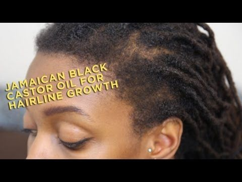 Another Testimonial For Jamaican Black Castor Oil For