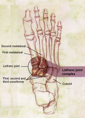 how to tell fracture from sprain