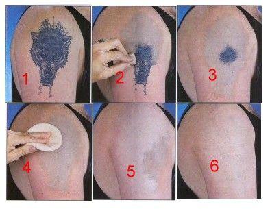 Rejuvi tattoo removal los angeles ~ Val from tattoo