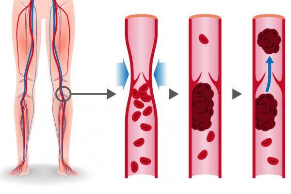 organe interne de varicoase
