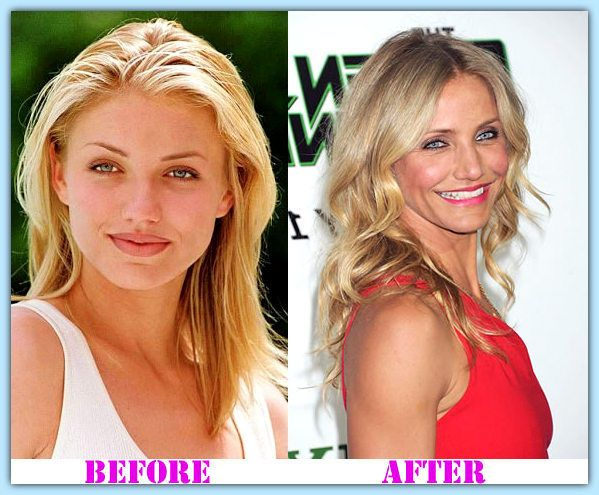 Cameron Diaz plastic surgery before and after Cameron Diaz Plastic Surgery #CameronDiazplasticsurgery #CameronDiaz #psycwellness