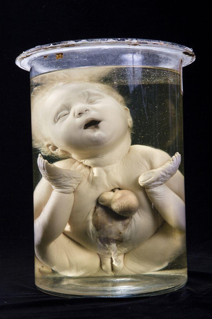 Foto da un Atlante di Anatomia Patologica   Motherboard