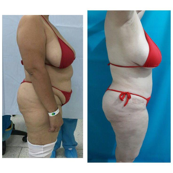 Mejores 8 imágenes de Cirugía plástica de contorno corporal en Pinterest
