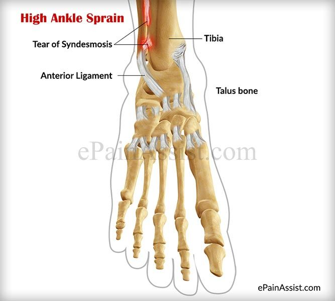 What is High Ankle Sprain or Syndesmotic Ankle Sprain? Read: http://www.epainassist.com/sports-injuries/ankle-injuries/high-ankle-sprain