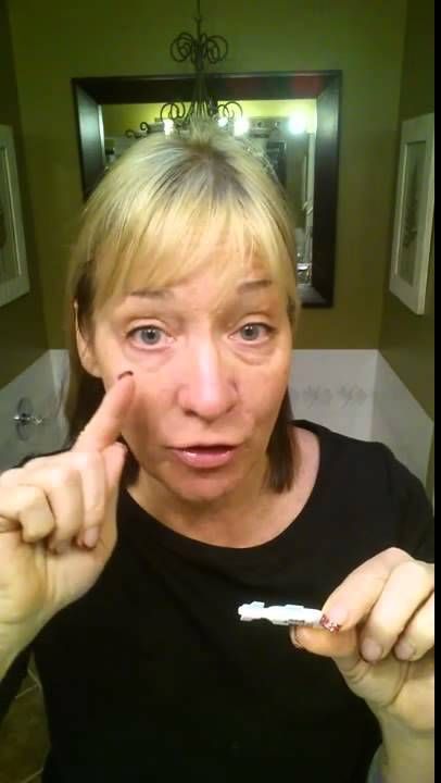 Having FUN with Instantly Ageless!
