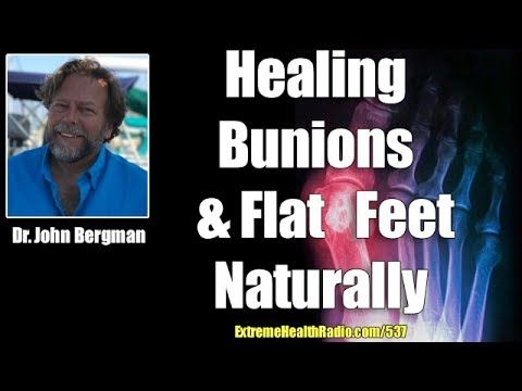 Dr. John Bergman talks about what causes bunions aka hallux valgus and some natural treatments for bunions. Bunions are the result of calcification, inflamma...