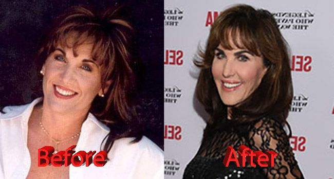 Robin Mcgraw Before And After Robin Mcgraw Plastic Surgery Celebrity Plastic Surgery Plastic Surgery