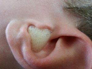 Utiliser du peroxyde pour nettoyer vos oreilles.
