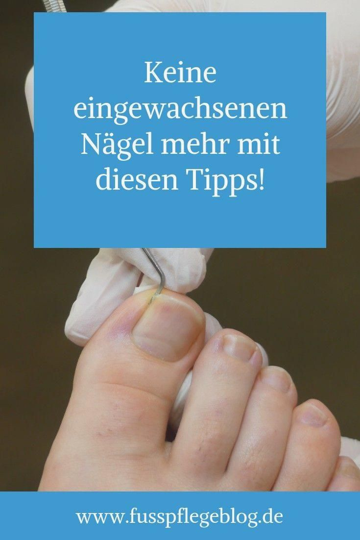 Treat ingrown toenail   Foot Care Blog #foot #getridof #ingrown #ingrownnails #nail #nails