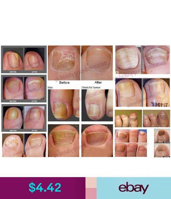 Supernew Hand Sanitizers Ebay Health Beauty Hand Sanitizer