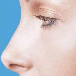 La rhinoplastie une opération esthétique pour la remodelage du nez.