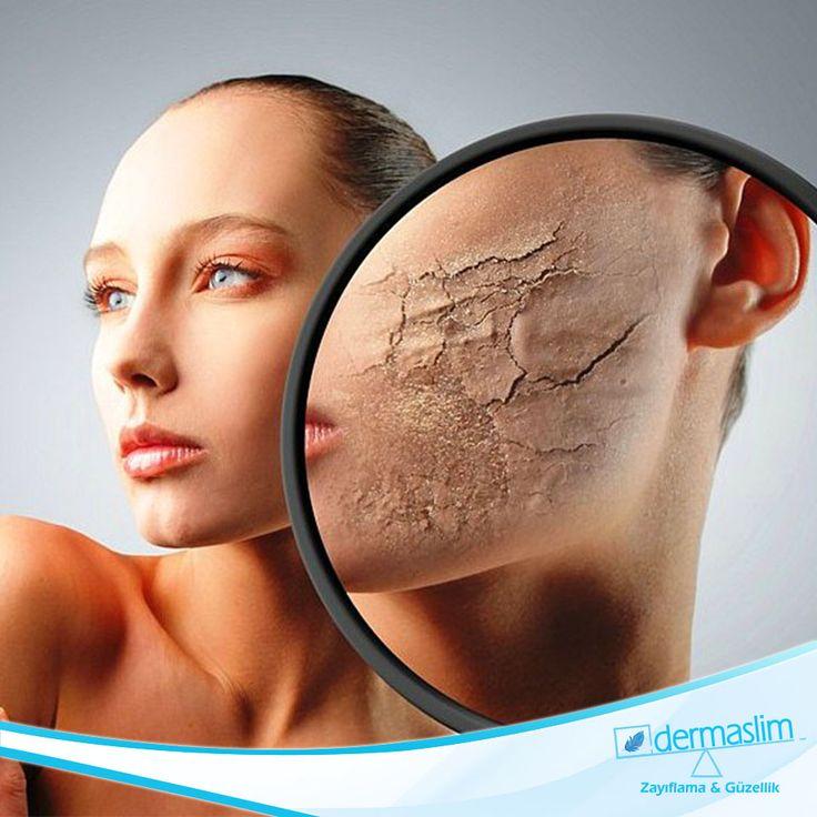 Dermapen ile Sizde cildinizi yenileyin ! Cilt yenileme, leke, kırışıklık ve sarkmalar üzerinde oldukça etkili olan FDA onayllı Dermapen uygulaması tüm cilt tipleri için güvenli bir uygulamadır! Detaylı bilgi için bizimle iletişime geçin: 0 216 688 00 26