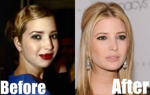 Ivanka Trump before and after. Rhinoplasty to shrink her nose and chin implant