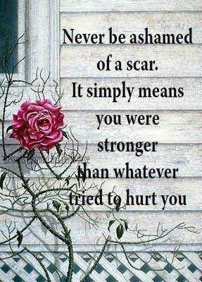 never be ashamed of a scar life quotes quotes quote life quote