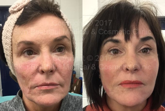 Thread lift before & after. A masterful 7 point PDO thread lift by Helen Bowes
