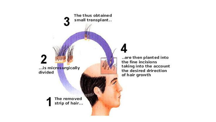 There are few cases where people lose their confidence when they lose their hairs. Hair transplant is the only solution to all the worries. Hair transplantation the surgical procedure where the healthy follicles is transplanted to the balding area of scalp.