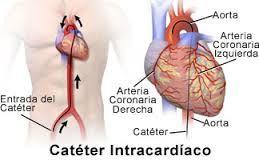 cateterismo cardiaco - Buscar con Google