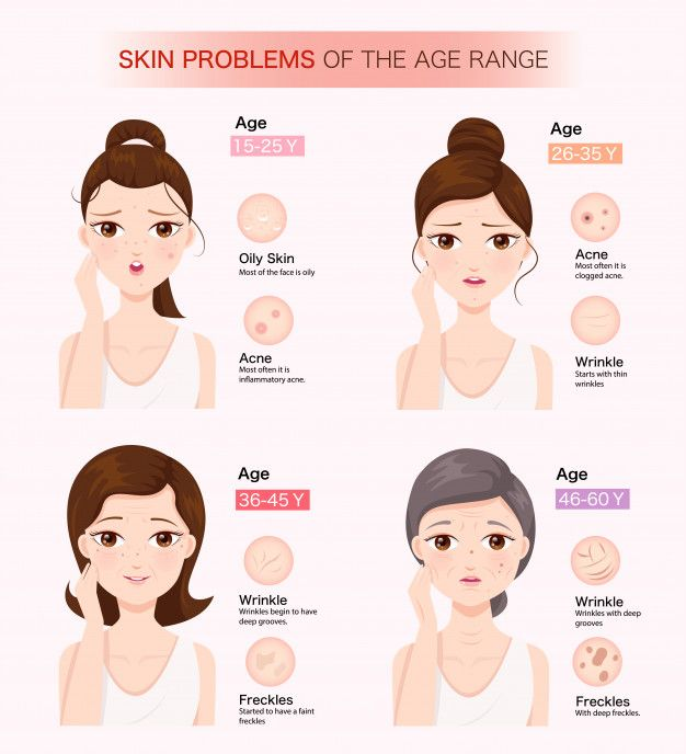 Skin Problems Of The Age Range Skin Problems Skin And Hair Clinic Skin Diseases