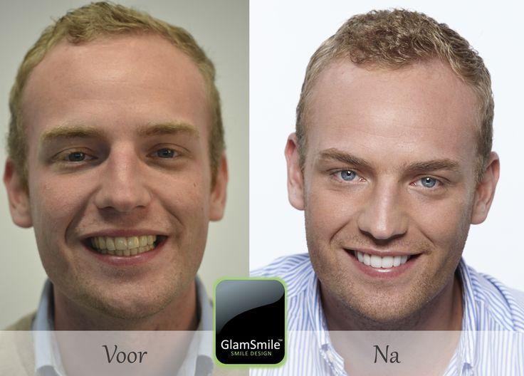 Thomas koos voor een permanente whitening met GlamSmile facetten. www.glamsmile.be